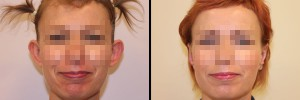 kobieta-przed-operacja-uszu-