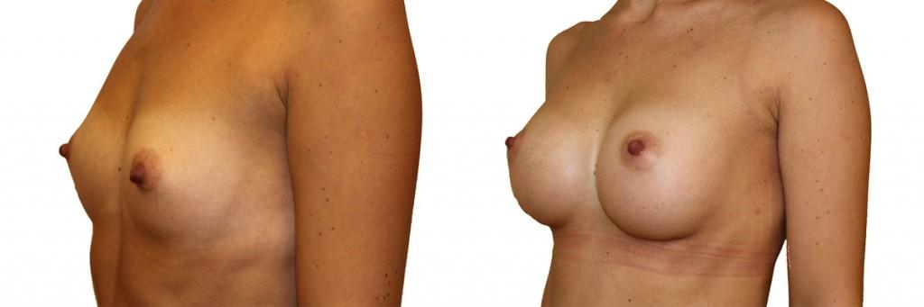 Małe piersi przed operacją oraz pełne po operacji