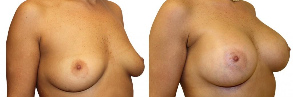 Operacja powiększenia piersi w klinice Dr Olender - przed i po.