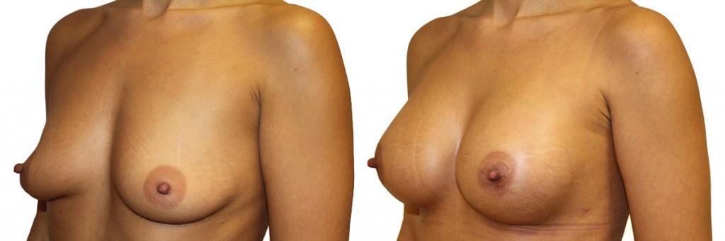 Przed i po operacji powiększenia piersi w Dr Olender