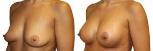 male-piersi-przedi-poprawione-piersi-po-zabiegu-u-dr-olender