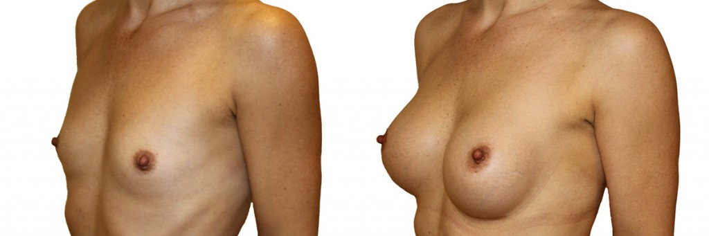 Przed i po zabiegu operacji
