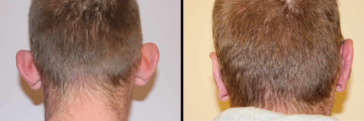 Mężczyzna przed i po operacji uszu w Dr Olender