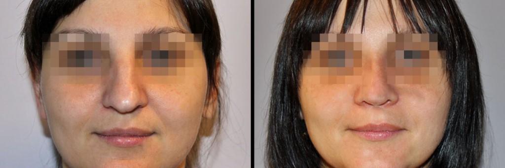 Przed korekta i po korekcie nosa w klinice Dr Olender