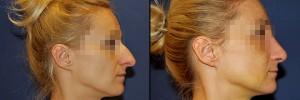 Operacja nosa - zdjęcie przed i po