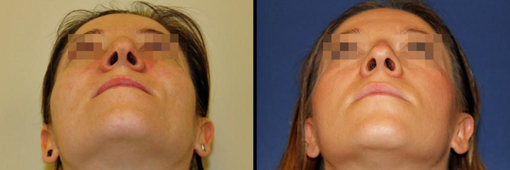 Zdjęcie nosa z dołu - przed operacją i po korekcie nosa