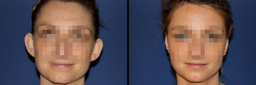 Kobieta przed i po zabiegu korekty uszu