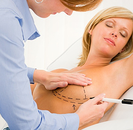 plastyka piersi z użyciem implantów w klinice dr Olender