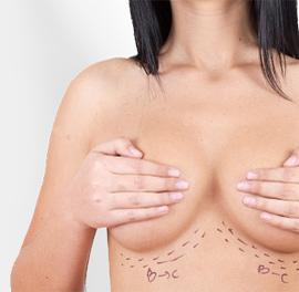 olender-powiekszanie-piersi