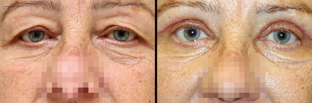 Powieki przed i po operacji plastyki powiek