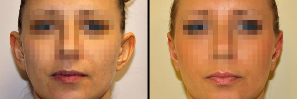 Zabieg korekty odstających uszu - przed i po