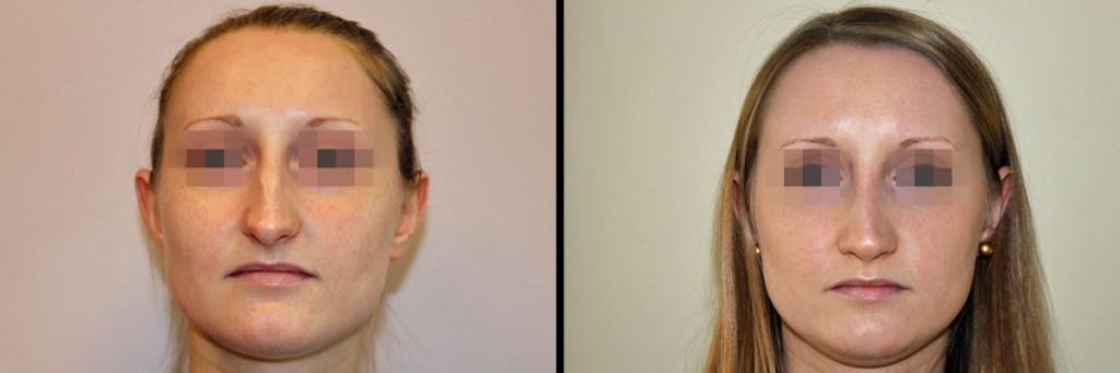 Twarz kobiety przed operacją i po operacji nosa