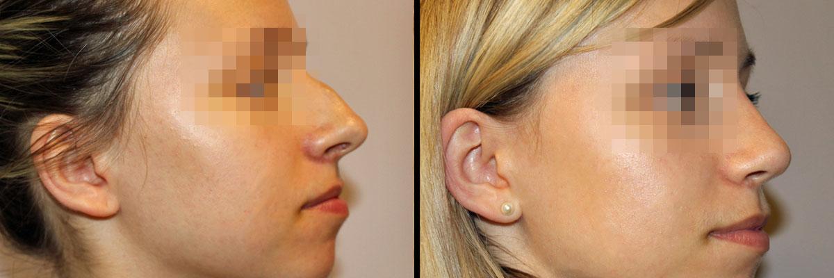 Nos przed operacja oraz po zabiegu w klinice Dr Olender