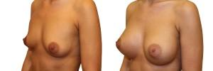 Efekty przed i po operacji piersi