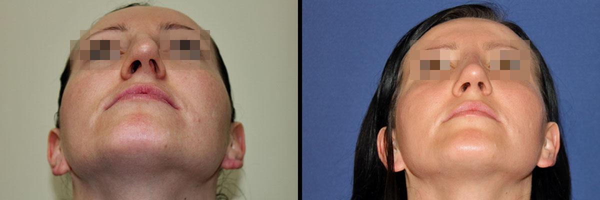 Przed oraz po korekcie nosa