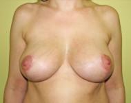 piekne piersi po operacji podniesienia