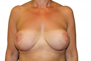 po operacji podniesienia piersi