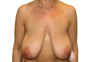 przed operacją podniesienia piersi