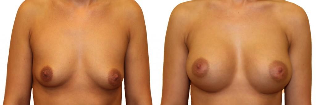 Przed i po operacji powiększenia piersi w klinice Dr Olender
