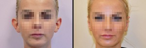 Porównanie - przed i po korekcie odstających uszu