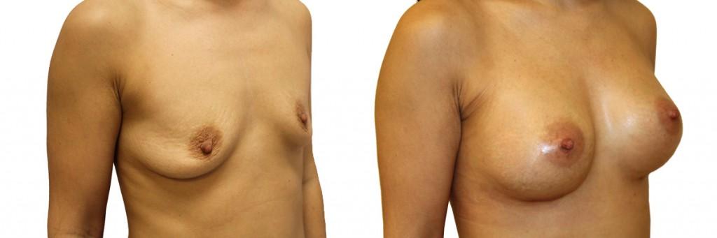 Bardzo małe piersi przed operacją oraz pełne piersi po zabiegu.