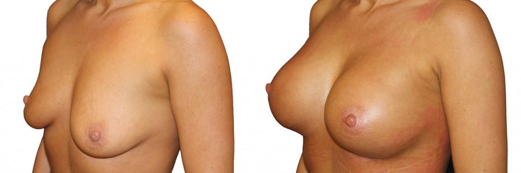 Przed operacją piersi i po