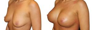 operacje-piersi-przeprowadzne-w-klinice-dr-olender