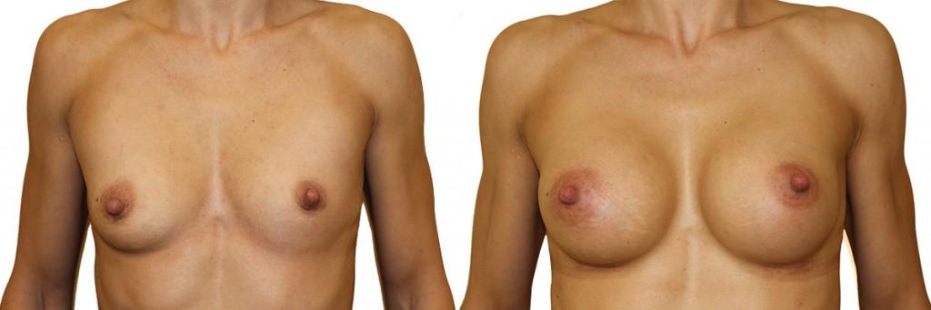Powiększenie piersi - zdjęcia przed i po operacji