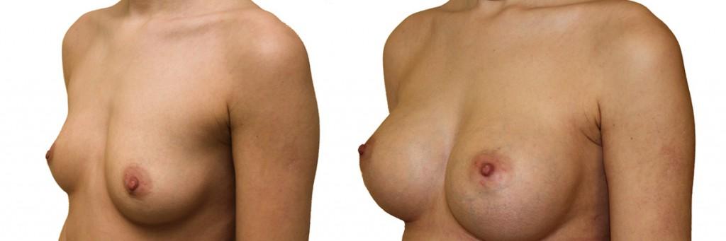 Piersi przed i po operacji w dr Olender