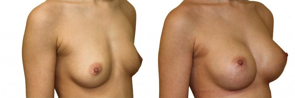 Przed operacją i po - efekty operacji piersi u Dr Olender