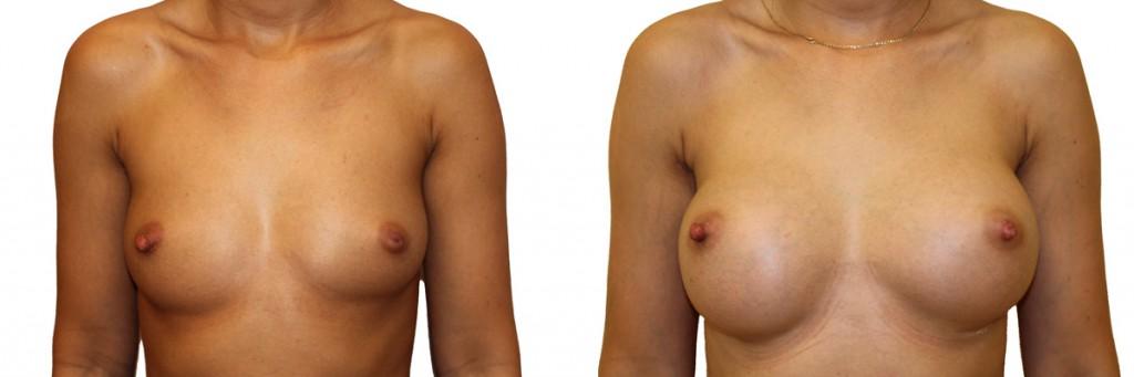 Piękne piersi po operacji