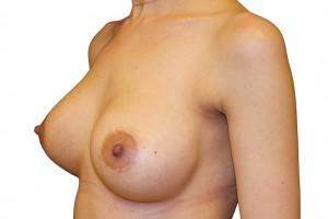 po operacji powiększania piersi