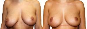 podniesieni-piersi-efekt-przed-i-po