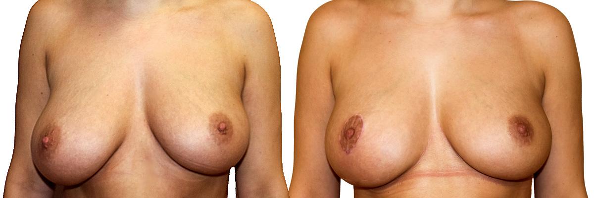 Piersi przed oraz po operacji podniesienia