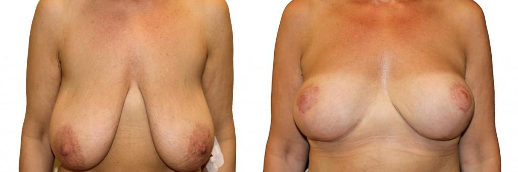 Operacja piersi w klinice Dr Olender - przed i po