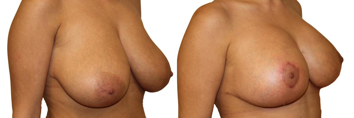 Plastyka piersi - piersi przed oraz po operacji