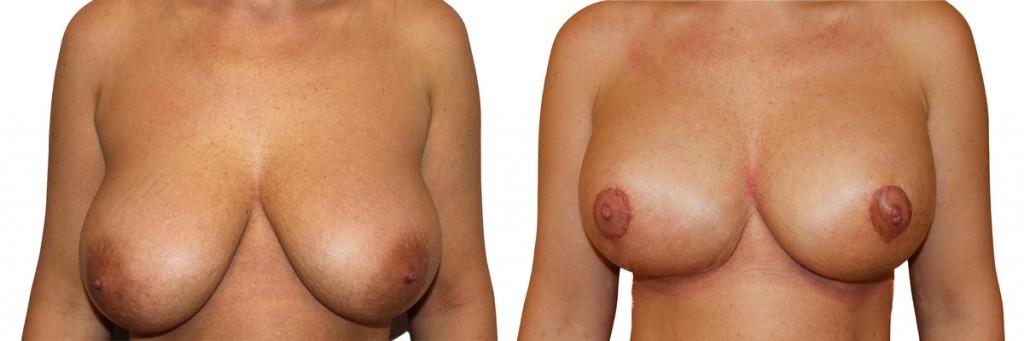 Podniesienie piersi w klinice Dr Olender