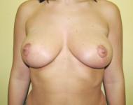 po operacji podniesienia piersi w kinice Olender
