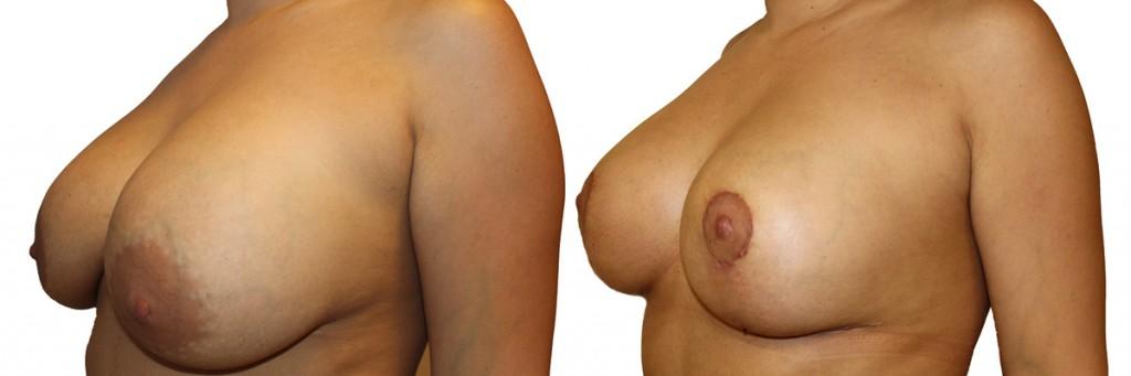 Piersi przed oraz po operacji podniesienia piersi
