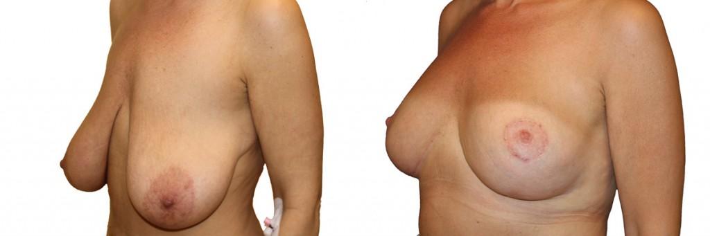 Operacja plastyki piersi z implantami