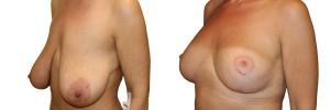 podniesienie-piersi-z-implantami