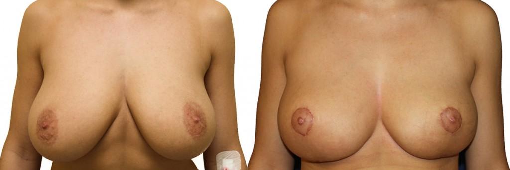 Efekt przed oraz po operacji plastyki piersi wraz z zastosowaniem implantów