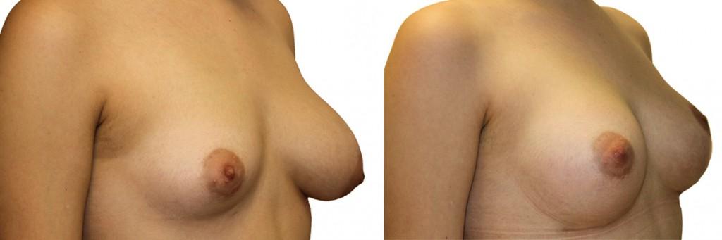 Podniesienie piersi przed i po operacji