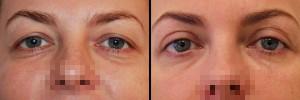 Efekt po zabiegu plastyki powiek w klinice Dr Olender