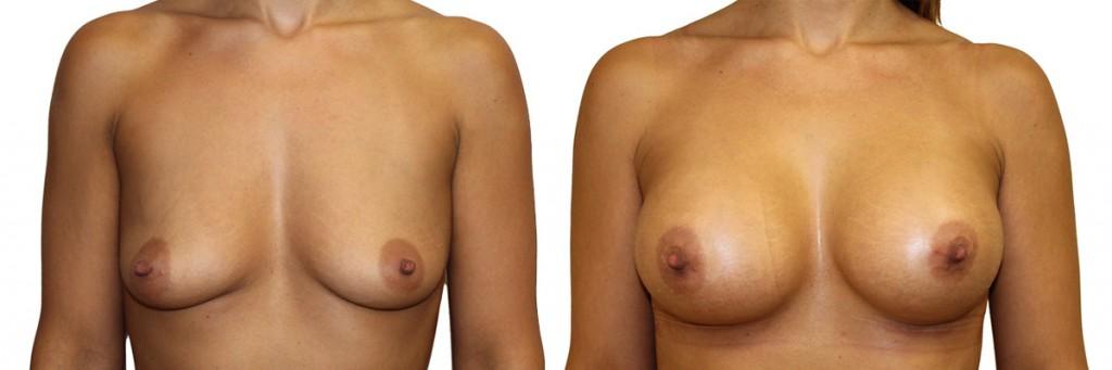 Przed i po operacji piersi
