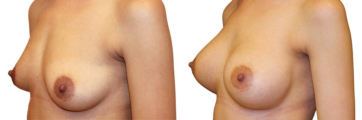 Piersi przed operacją i po zabiegu