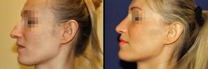 Profil twarzy z nosem przed operacja i po operacji plastycznej nosa