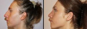Nos przed operacja oraz po zabiegu korekty w klinice Dr Olender