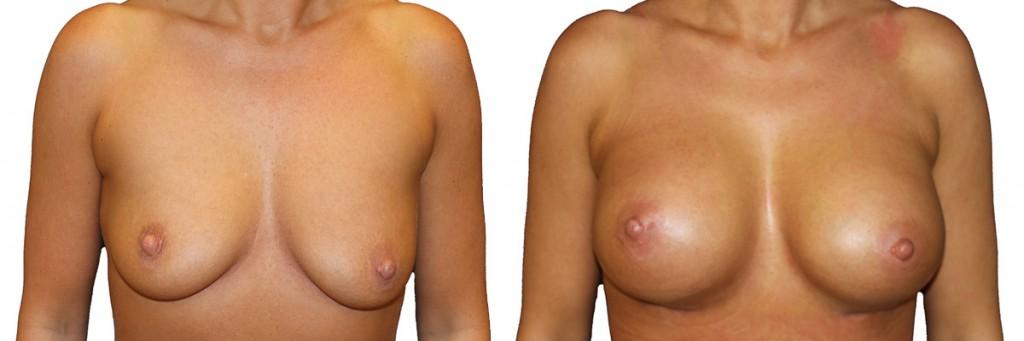 Przed i po operacji powiększenia piersi
