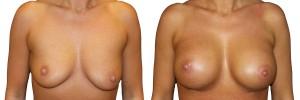 przed-i-po-efekty-po-operacji-piersi-w-klinice-dr-olender
